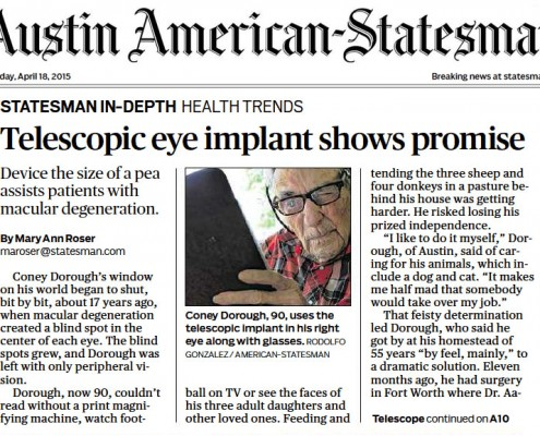 CentraSight telescope implant for advanced macular degeneration makes front-page news
